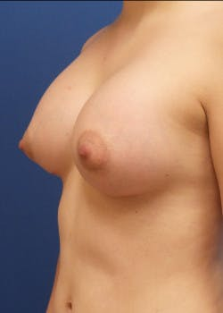 Breast Augmentation Gallery - Patient 46628990 - Image 2