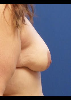 Breast Augmentation Gallery - Patient 46629020 - Image 3