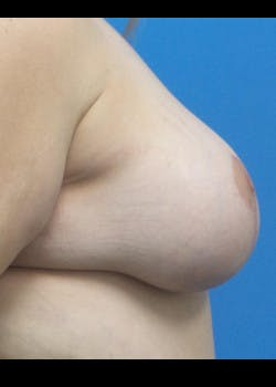 Breast Augmentation Gallery - Patient 46629020 - Image 4