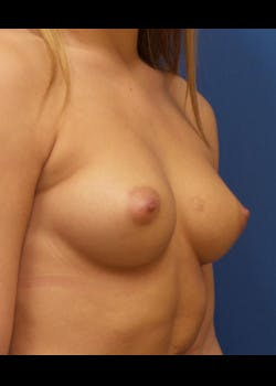 Breast Augmentation Gallery - Patient 46629040 - Image 1