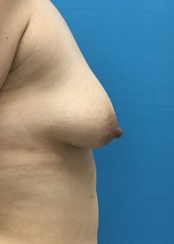 Breast Augmentation Gallery - Patient 46629069 - Image 3