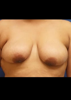 Breast Augmentation Gallery - Patient 46629082 - Image 1