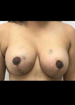Breast Augmentation Gallery - Patient 46629082 - Image 2