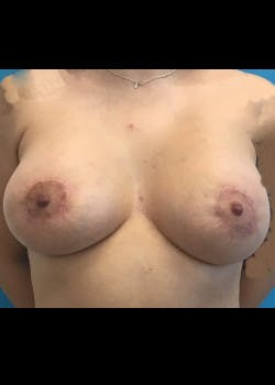 Breast Augmentation Gallery - Patient 46629116 - Image 2