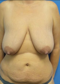 Breast Augmentation Gallery - Patient 46629161 - Image 1
