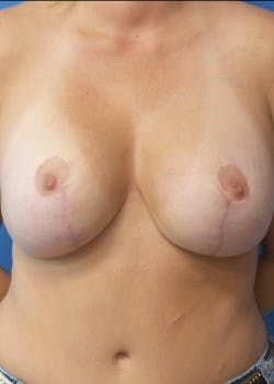 Breast Augmentation Gallery - Patient 46629161 - Image 2