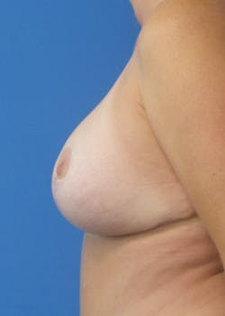 Breast Augmentation Gallery - Patient 46629161 - Image 4