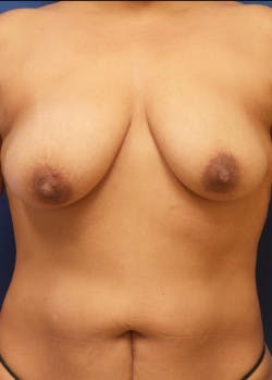 Breast Augmentation Gallery - Patient 46629195 - Image 1