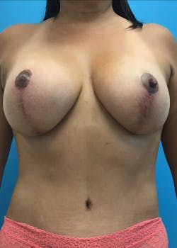 Breast Augmentation Gallery - Patient 46629195 - Image 2