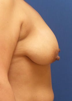Breast Augmentation Gallery - Patient 46629195 - Image 3