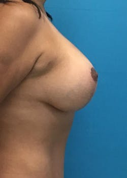 Breast Augmentation Gallery - Patient 46629195 - Image 4