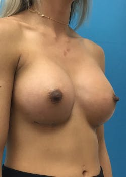Breast Augmentation Gallery - Patient 46629323 - Image 2
