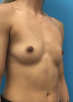 Breast Augmentation Gallery - Patient 46629323 - Image 1
