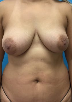 Breast Augmentation Gallery - Patient 46629324 - Image 3