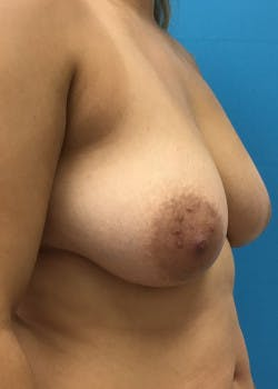 Breast Augmentation Gallery - Patient 46629324 - Image 1