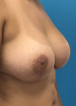 Breast Augmentation Gallery - Patient 46629324 - Image 2