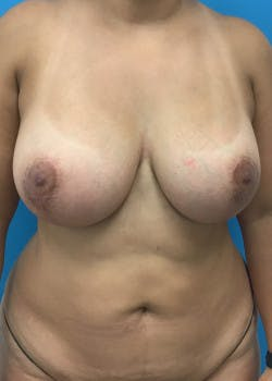 Breast Augmentation Gallery - Patient 46629324 - Image 4
