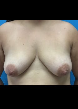 Breast Augmentation Gallery - Patient 46629325 - Image 3