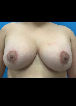 Breast Augmentation Gallery - Patient 46629325 - Image 4