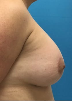 Breast Augmentation Gallery - Patient 46629325 - Image 2