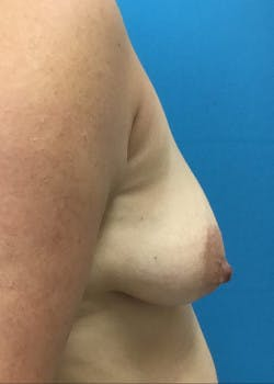 Breast Augmentation Gallery - Patient 46629325 - Image 1
