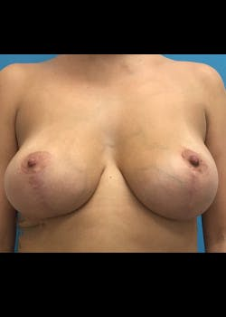 Breast Augmentation Gallery - Patient 46629326 - Image 2
