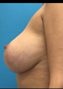 Breast Augmentation Gallery - Patient 46629326 - Image 4