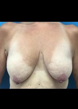Breast Augmentation Gallery - Patient 46629327 - Image 1
