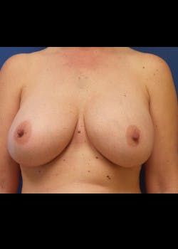Breast Augmentation Gallery - Patient 46629329 - Image 2
