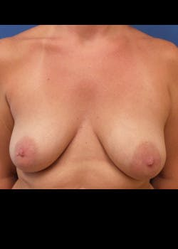 Breast Augmentation Gallery - Patient 46629331 - Image 1