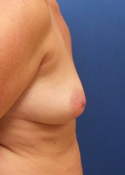 Breast Augmentation Gallery - Patient 46629331 - Image 3