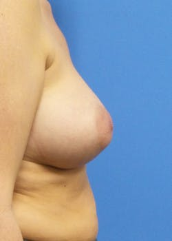 Breast Augmentation Gallery - Patient 46629331 - Image 4