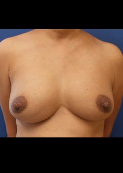 Breast Augmentation Gallery - Patient 46629332 - Image 1