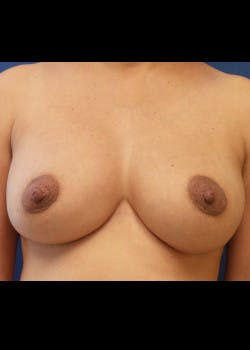 Breast Augmentation Gallery - Patient 46629332 - Image 2