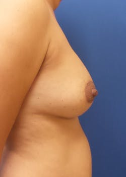 Breast Augmentation Gallery - Patient 46629332 - Image 3