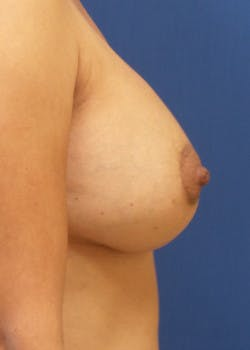 Breast Augmentation Gallery - Patient 46629332 - Image 4