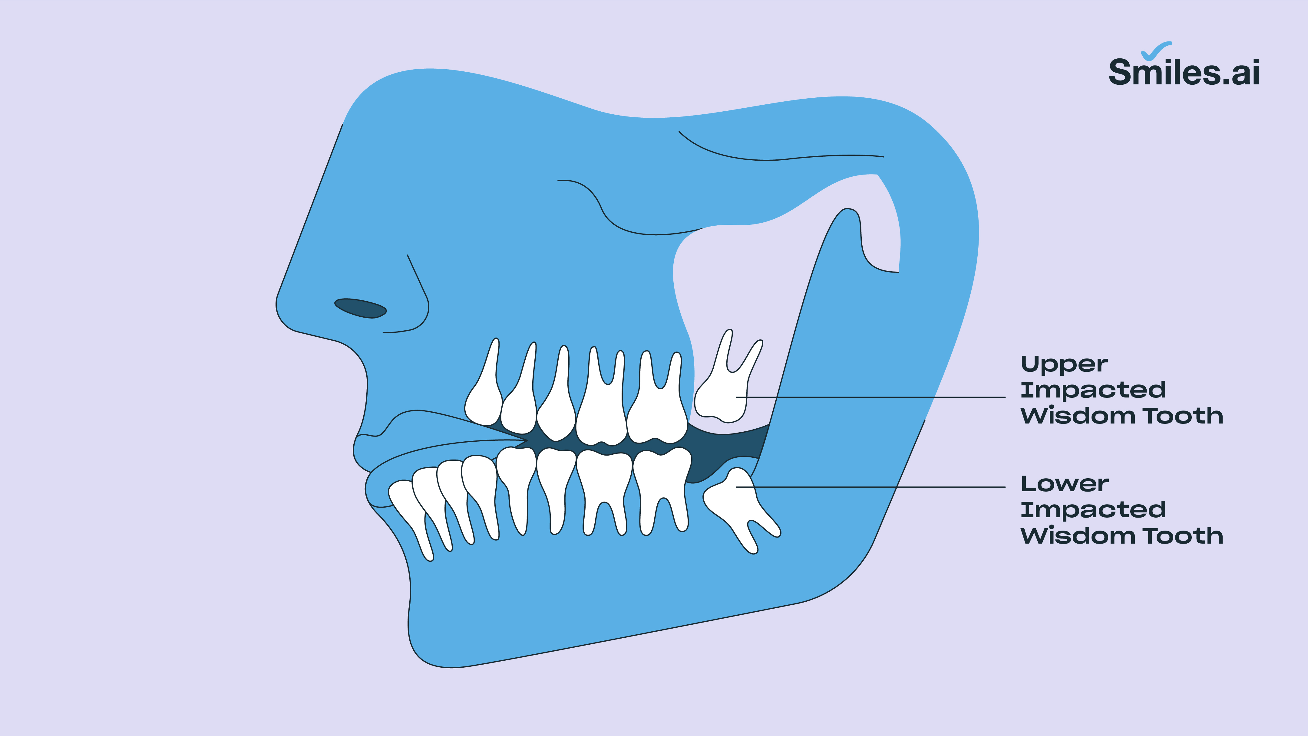 Impacted wisdom tooth