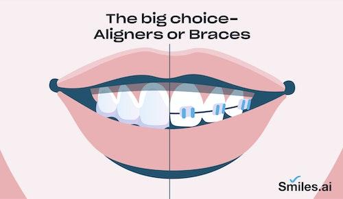 aligners or braces