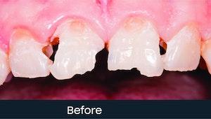 composite bonding teeth