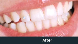 fixed teeth