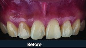 teeth coverings