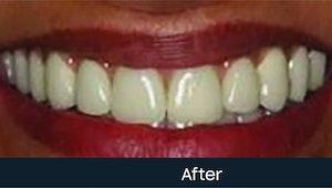 dentures cost