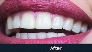 teeth scaling cost