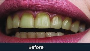deep cleaning teeth cost