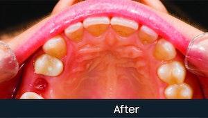 wisdom teeth stitches