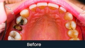 molar extraction