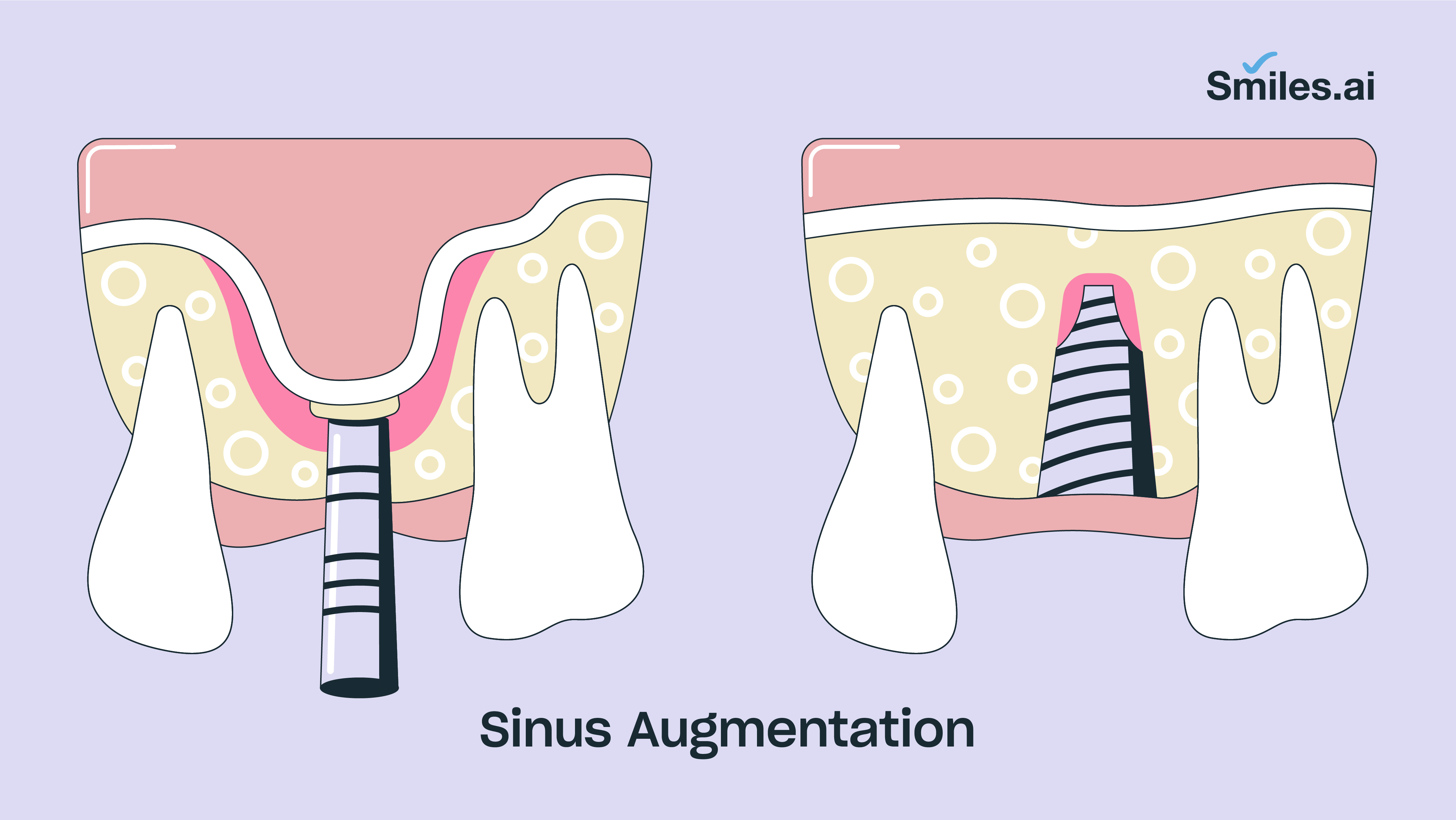 Sinus augmentation
