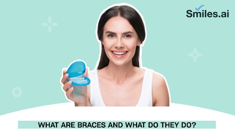 What are Braces and what do they do?
