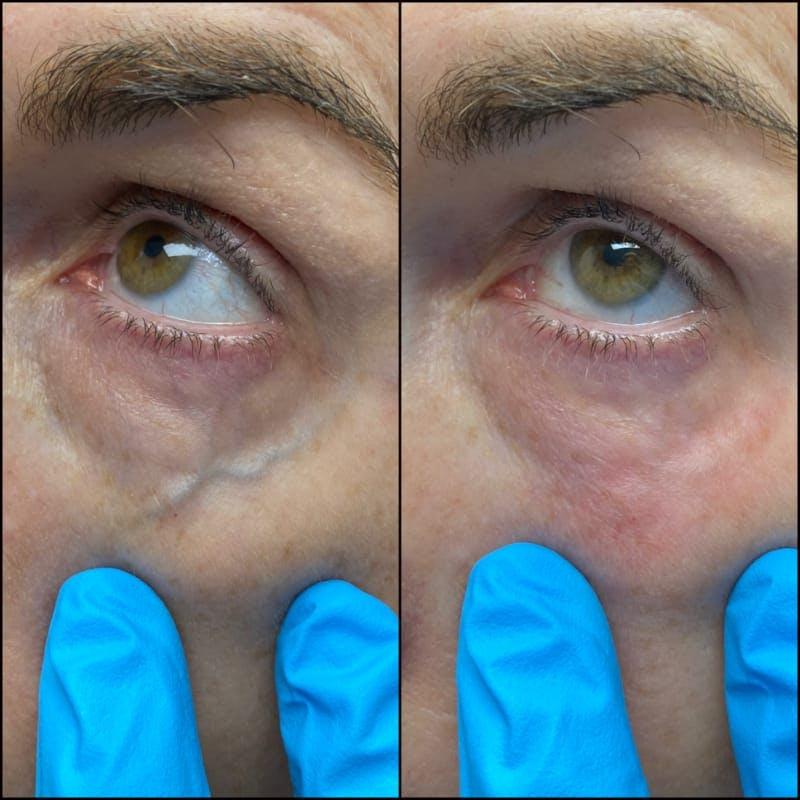 Under-Eye Vein Treatment
