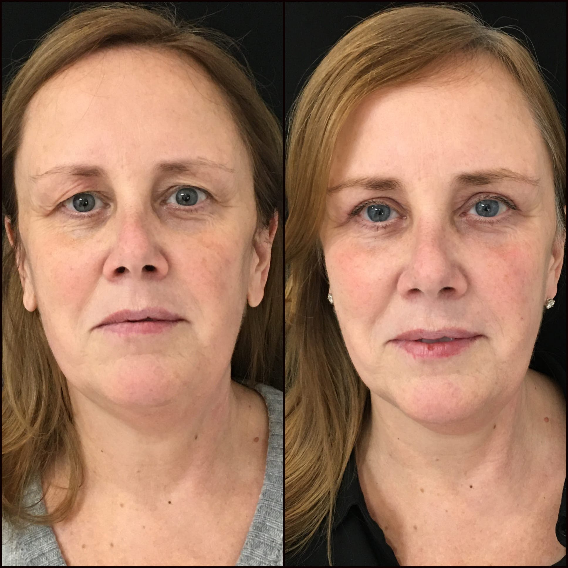 Upper Blepharoplasty Gallery - Patient 53591723 - Image 1